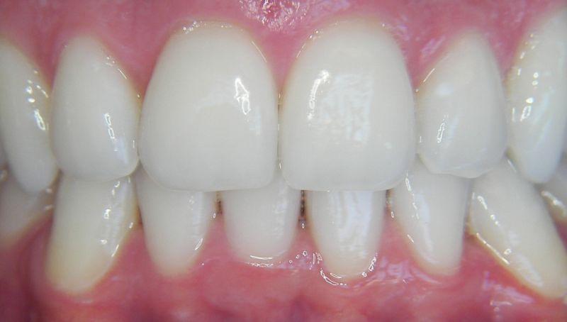 blanqueamiento dental enzimático