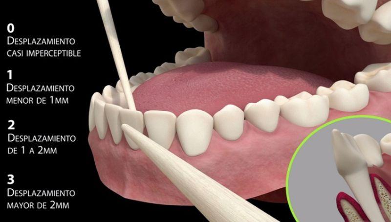 grados de movilidad dental