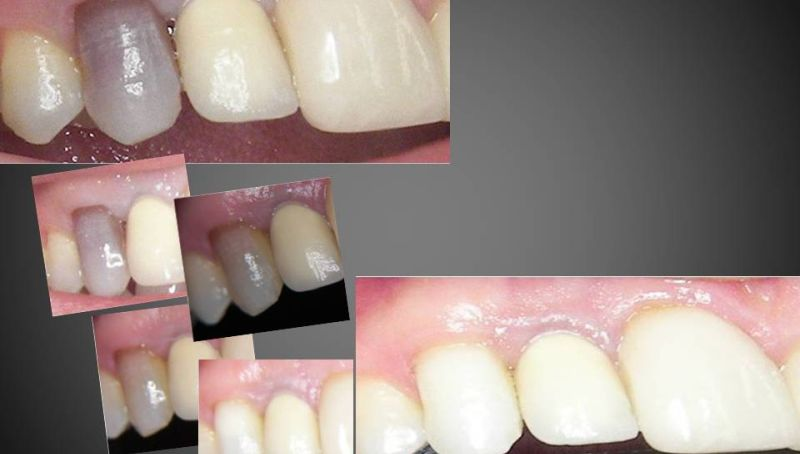 blanqueamiento dental interno