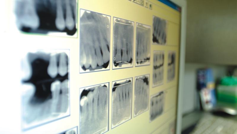 Cuándo extraer dientes y poner implantes