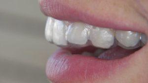 bruxismo y rechinamiento dental