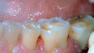 bruxismo y pérdida dental