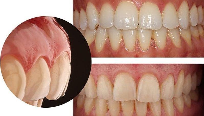 abfracciones y pérdida dental