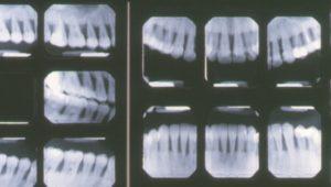 enfermedad periodontal y piorrea